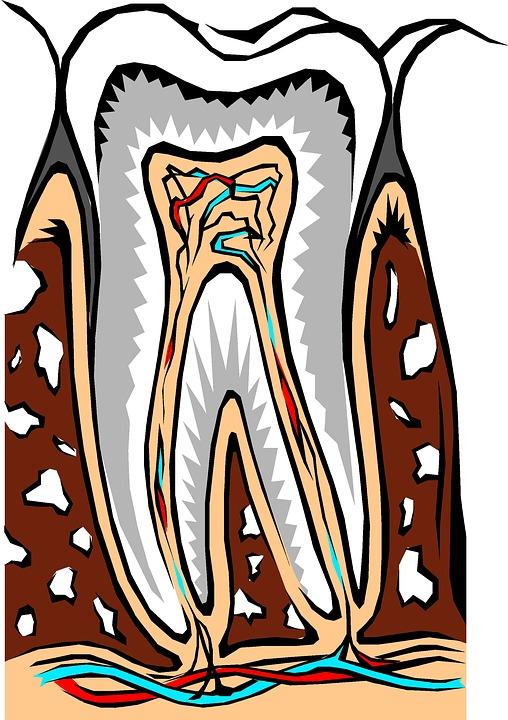 Dantų implantantai